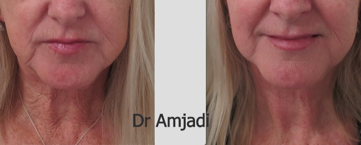 DrAmjadiFacelift004_edited.jpg