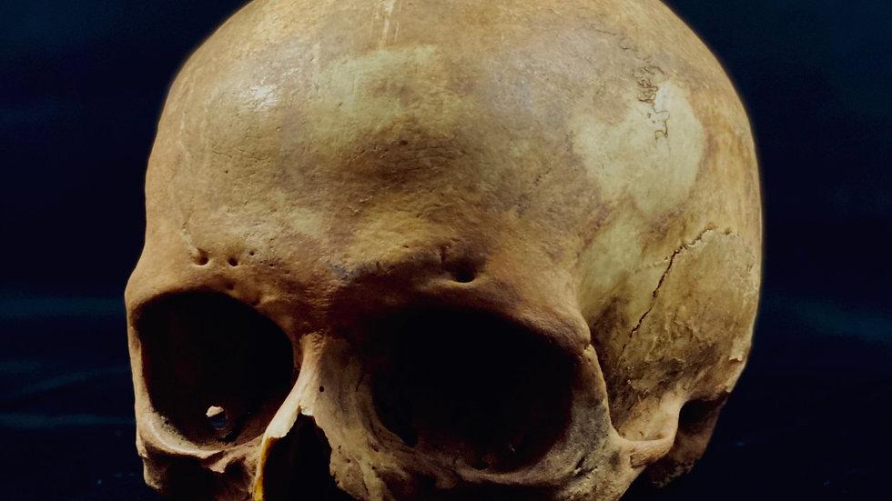 Human skull (female)