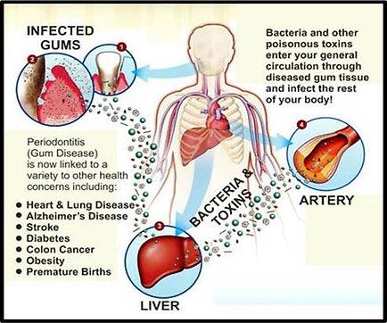ADS_Gum-Disease1_edited_1.jpg