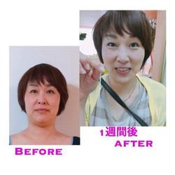 ◯◯さんの Before after