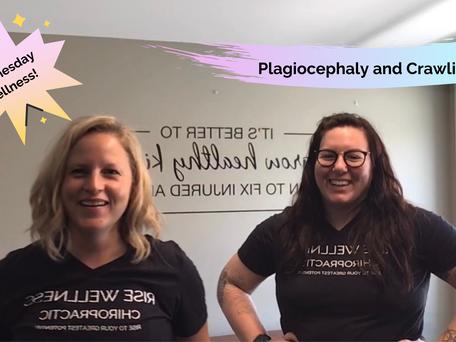 Wednesday Wellness: Plagiocephaly and Crawling