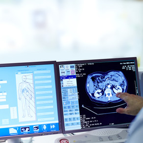 Using Artifical Intelligence to Improve Lung Cancer False Positives