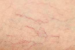 LASER VEIN THERAPY