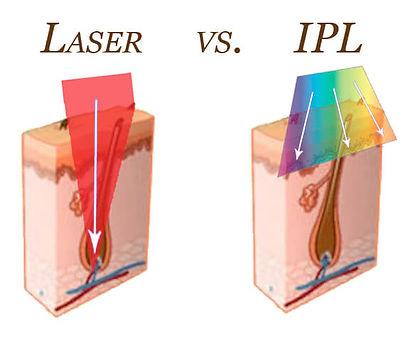 Laser-vs-IPL-article-image1.jpg