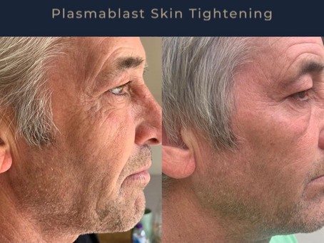 Fibroblast is a star shaped cell in your skin that produces collagen. Treatments wake these cells up
