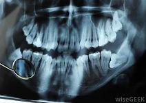 dental-x-ray-with-wisdom-teeth.jpg