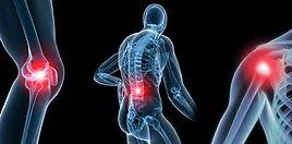 osteoarthritis-540x266-1.jpg