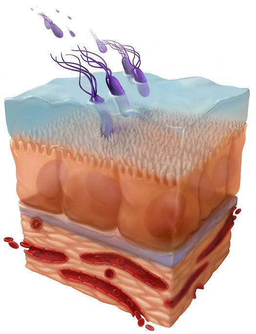 H pylori infection