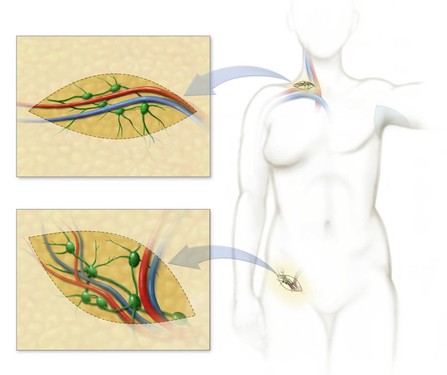 Lymph node donor sites