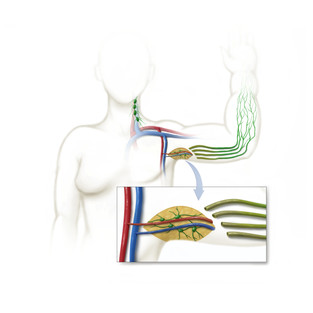 Lymphedema surgery