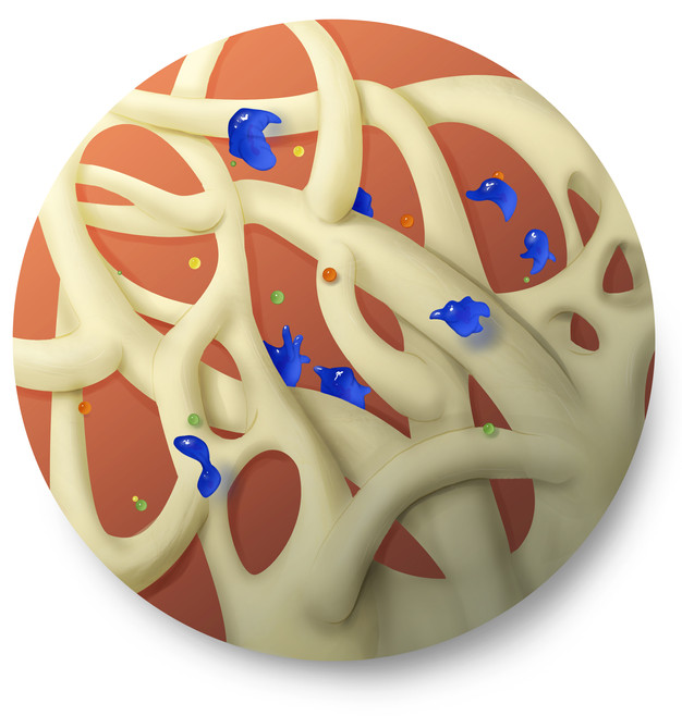 Metastasis inset 4.jpg
