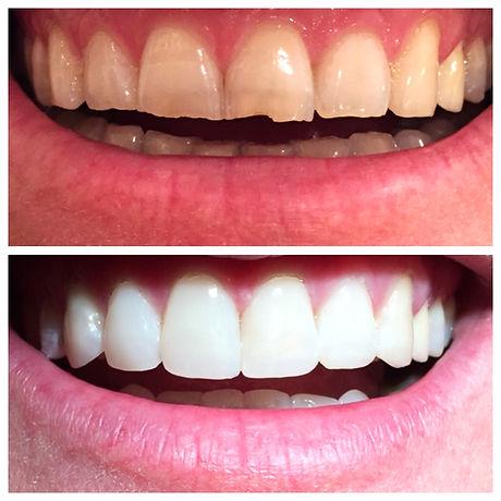 יישור שיניים המלצות