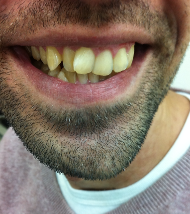 יישור שיניים בציפויי קריסטל