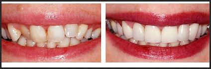 יישור שיניים בציפוי חרסינה