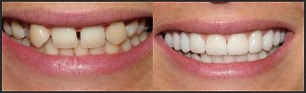 יישור שיניים בציפוי