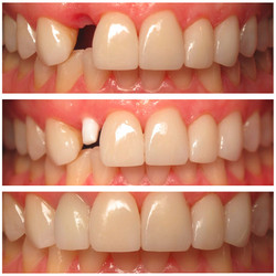 White-Zirconia-Dental-Implant