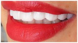hollywood-smile-beirut-lebanon-dentist-452iiyydkt_edited