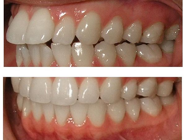המלצות יישור שיניים