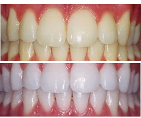 Teeth whitening kits | יישור שיניים , הלבנת שיניים | מרפאות סמייל קליניק