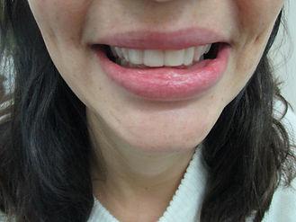 המלצות הלבנת שיניים
