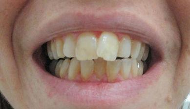 """יישור שיניים ע""""י ציפויי קריסטל"""
