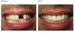 before-after-dental-implant-restoration