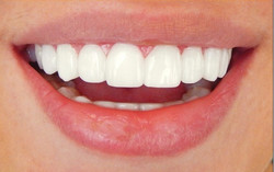 hollywood-smile-lebanon-beirut-style-dental-clinic-1-hjdfdhj4-x_edited