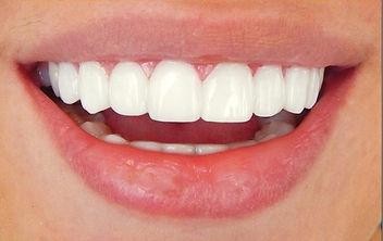 יישור שיניים מחיר