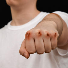 knuckle scrapes