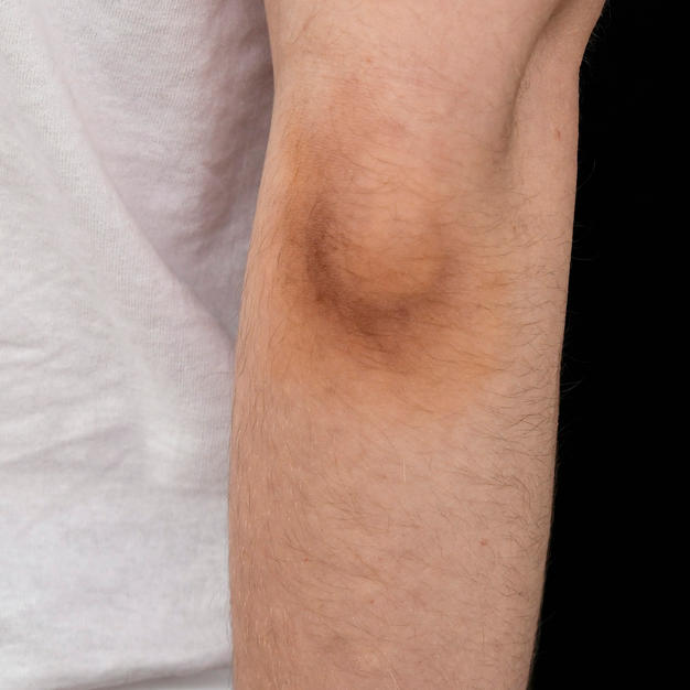 paintball bruise