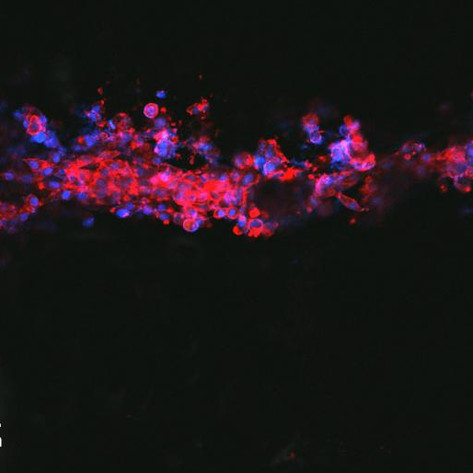 Printable ink guides cell growth, offers nerve injury hope