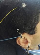 Electrodes NeuroFeedBac Dynamique