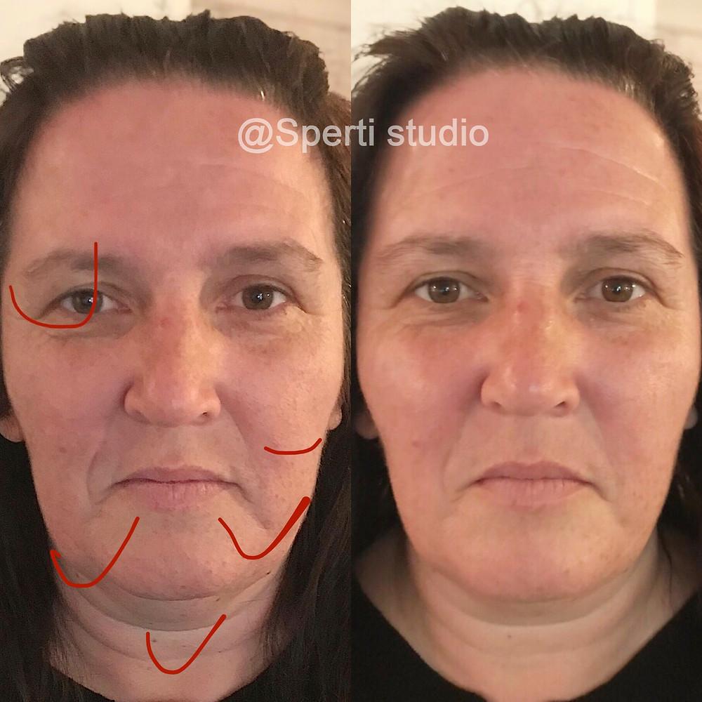 Manuální lifting obličeje je jemná masážní technika por elliminaci vrásek, rozjasnění obličeje, rozzáření pohledu a pleti. Získáte mladistvý vzhled neinvazivní technikou. Viditelná změna již po první aplikaci masáže. Sperti studio - relaxanční a beauty masáže, Uherské Hradiště.