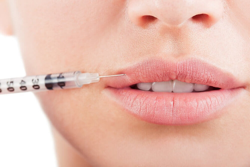 Good-Lip-Fillers-Image-BHRC.jpg