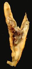 Boyun şahdamarını-karotis arteri-tıkayan yağ plakları