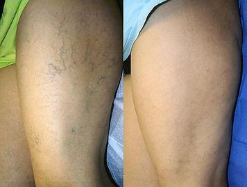 Varisin skleroterapi ile estetik tedavisi