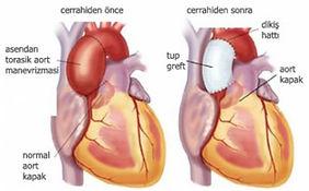 Çıkan aort anevrizmasının cerrahi yöntemle tedavisi