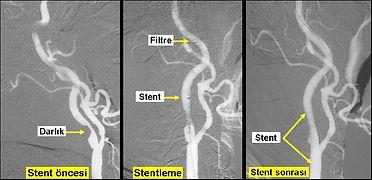 Şahdamarı tıknıklığının stent uygulaması ile tedavisi