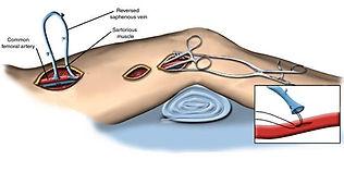 Bacak atardamarı tıkanıklığı hastalığının bypass ameliyatı ile tedavisi
