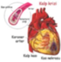 Kalp krizi nedir? Myocardial infarction