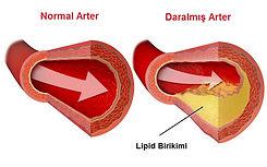 Yüksek kolesterol atardamarlarda tıkanıklık yapar