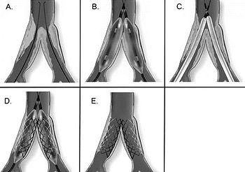 Bacak atardamarları tıkalı olan hastaya uygulanan balon ve stent tedavisi