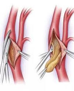 Şahdamarı tıkanıklığının endarterektomi ameliyatı ile tedavisi