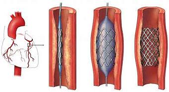 Tıkalı olan kalp damarının balon ve stent yöntemleri ile tedavisi