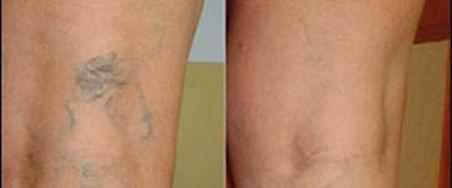 Skleroterapi tedavisi öncesi ve sonrası görünüm