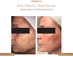 Real Patients Ageing & Hyperpigmentation