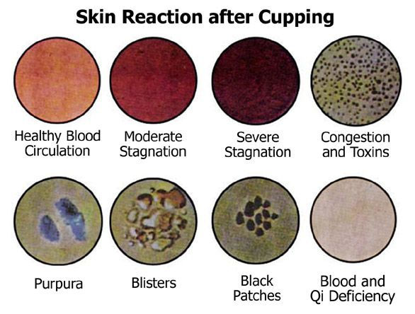 cupping marks chart