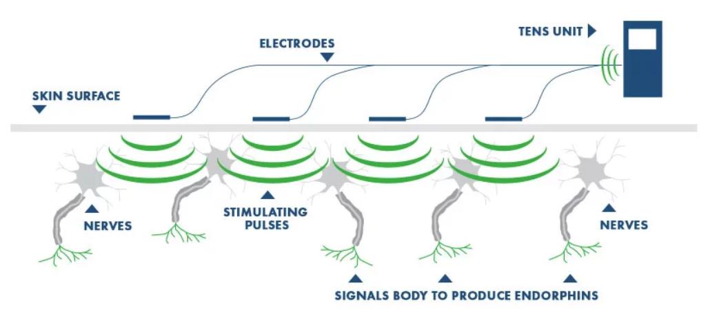 electrical stimulation
