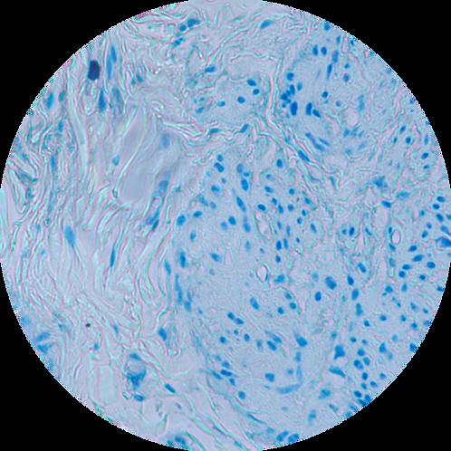 Толуидиновый синий для тучных клеток