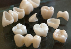 brux teeth_edited